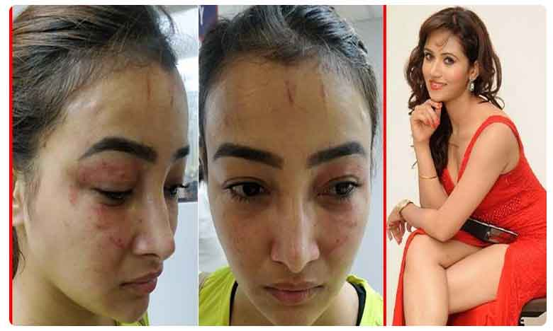 TV actress Nalini brutally attacked by roommate