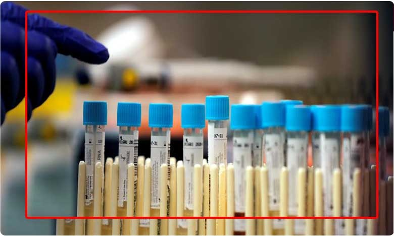 Coronavirus Vaccine Could Be Ready in Six Months Says Oxford University, ప్రపంచానికే ఇది శుభవార్త..కరోనా వ్యాక్సిన్ రెడీః ఆక్స్ఫర్డ్ యూనివర్శిటీ